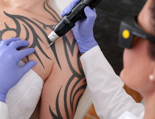 Five Tips For Choosing The Right Laser Tattoo Removal Service